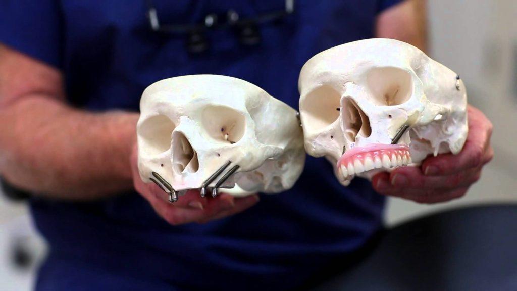 implanty zygomatyczne w szczęce