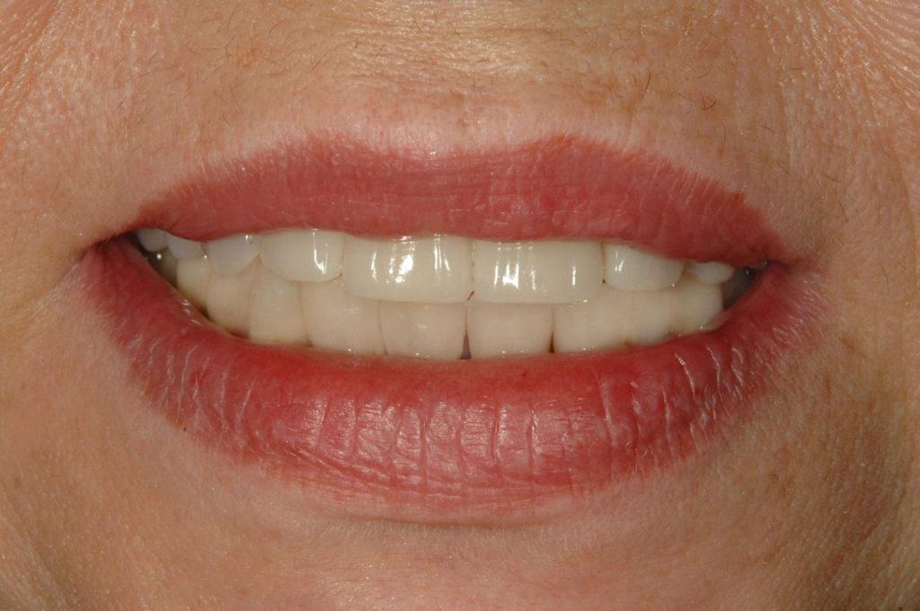 implanty zygomatyczne efekt końcowy